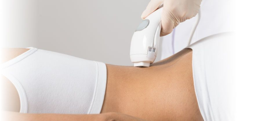 laser hair removal back